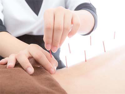 针灸推拿学专业-针灸治疗